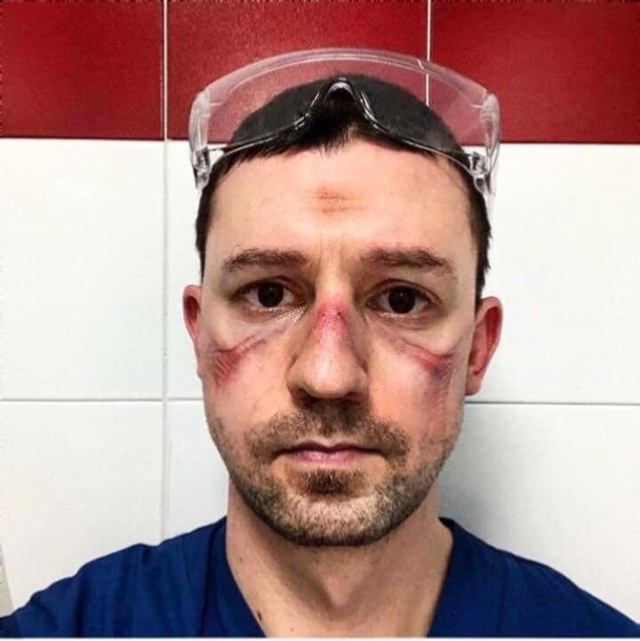 Появились фото сражающихся с коронавирусом итальянских врачей с ранами и синяками на лице