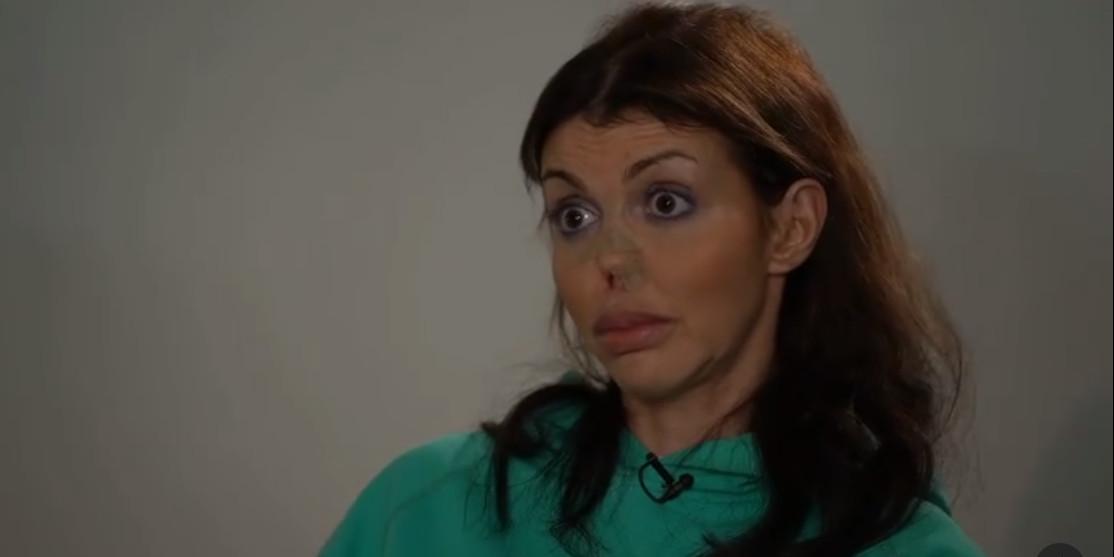 """Экс-супруга Аршавина: """"У меня лица нет, а живот разрезан вдоль"""""""