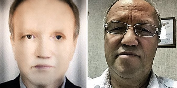 Житель Краснодара стал чернокожим после пересадки печени от афроамериканца