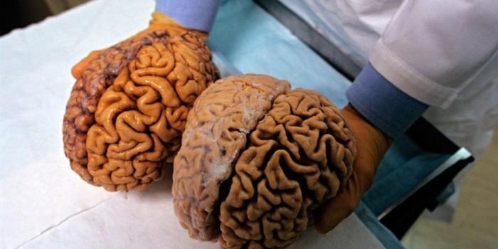 Ученые нашли способ воскрешать людей при помощи заморозки мозга