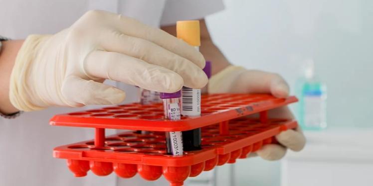 Собянин: любой москвич сможет сдать тест на антитела к COVID-19 в ближайшие 2-3 недели