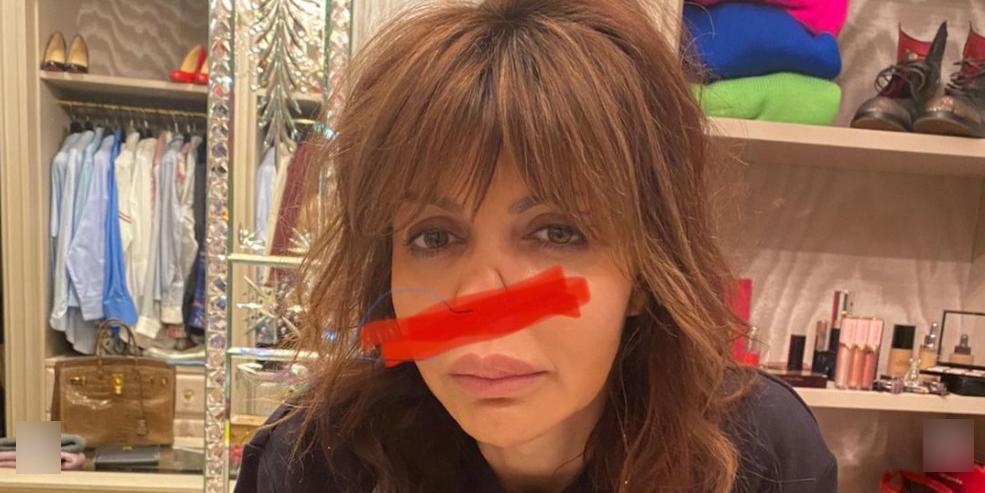 Изуродованный нос и опухоль на щеке: больная экс-супруга Аршавина показала больничные фото