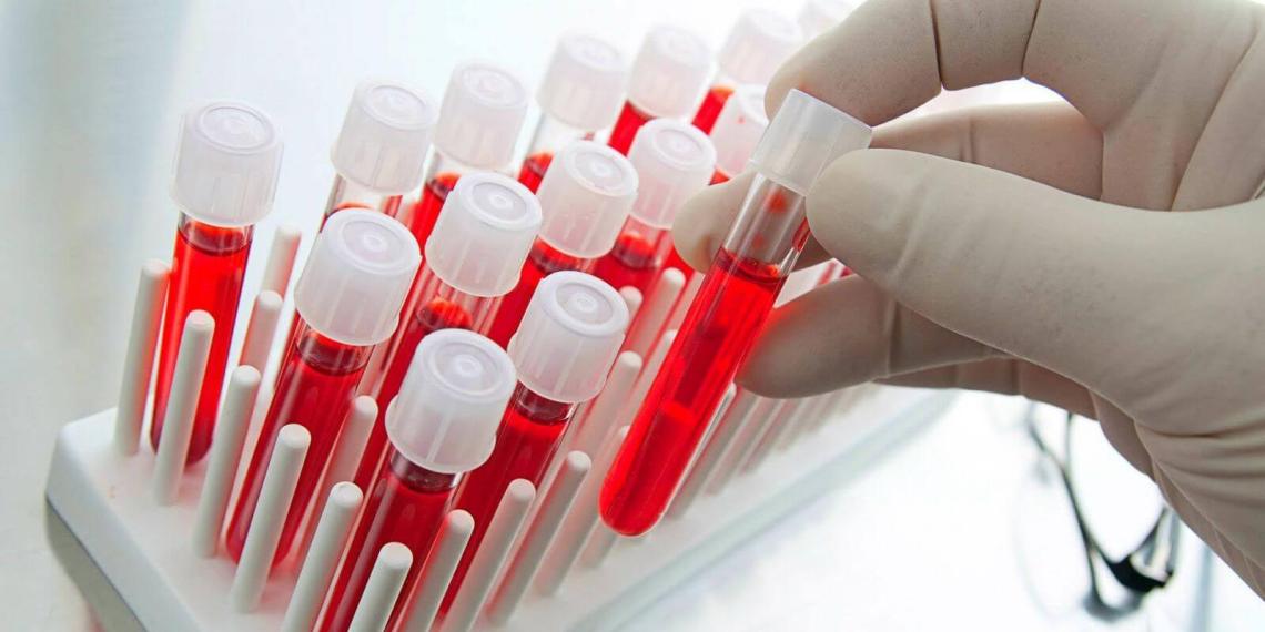 Российские ученые создали технологию измерения сахара в крови без уколов