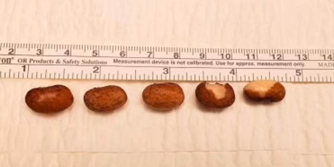 Врачи достали шесть фасолин из пениса американца